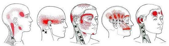 Baş Ağrısı Migren Tedavi